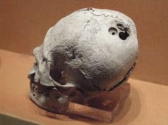 Human skull with holes from drilling